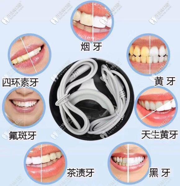 牙齿有这些情况都可以通过美白来改善