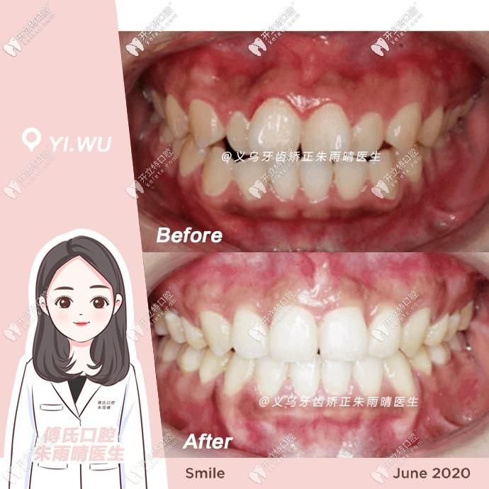 骨性二类牙齿拥挤也能矫正,钢丝牙套效果炒鸡赞哟