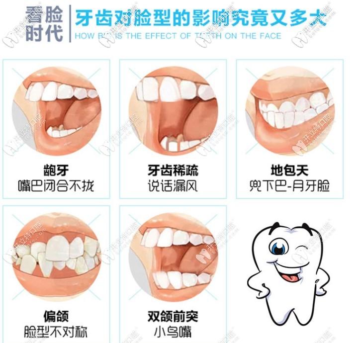 为什么大家选择做牙齿矫正