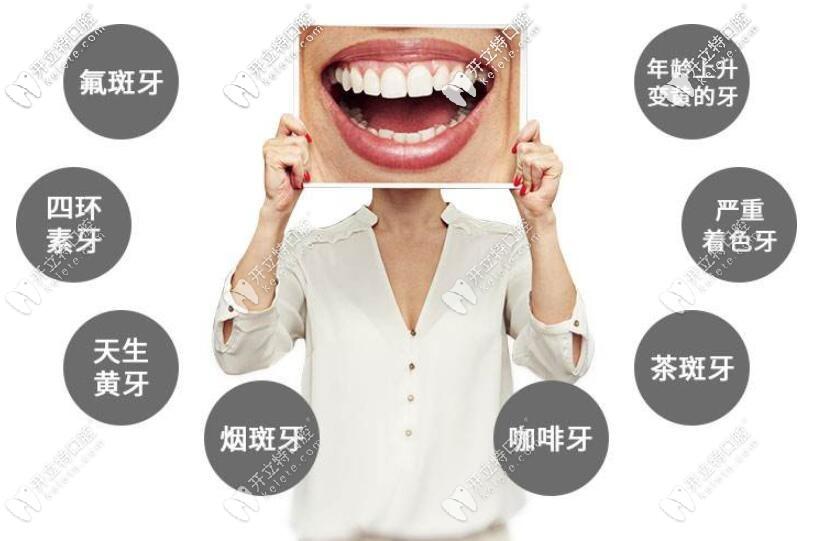前牙美学修复适应症