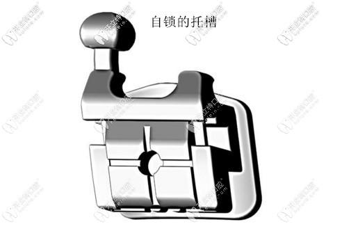 自锁牙套的自锁托槽示意图