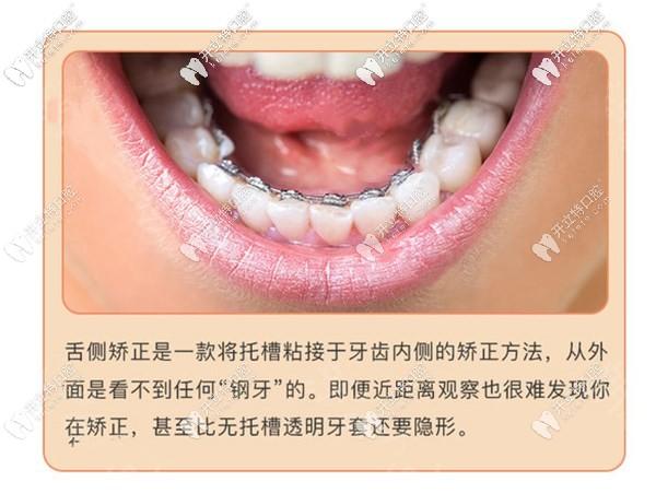 舌侧隐形矫正