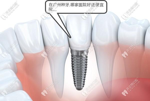 关于广州哪家医院做种植牙的价格便宜又好,都在此攻略