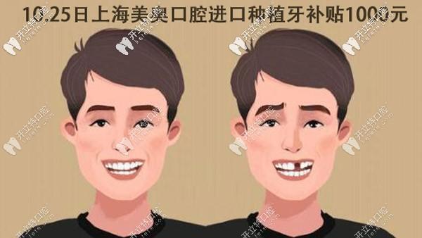 10.25上海美奥口腔进口种植牙补贴1000元,由谢润蘅医生亲诊