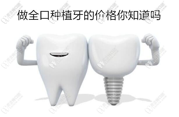 西安全口种植牙价格表来袭,用韩系和瑞士植体的费用差多少