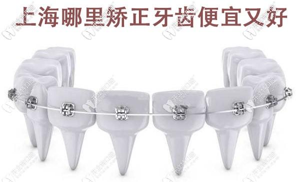 上海哪里矫正牙齿便宜又好,这些有名的牙科医院值得选择