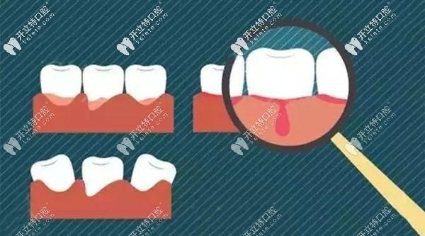 牙齿矫正失败