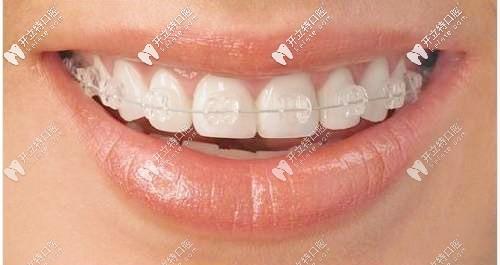 陶瓷托槽牙套