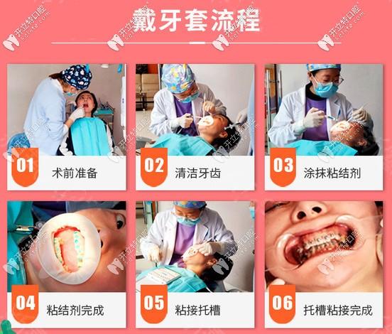 戴金属托槽牙齿矫正的流程