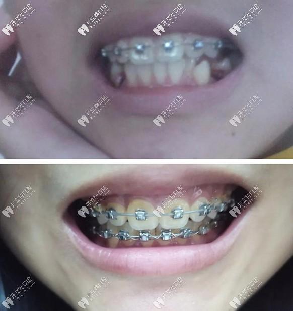 轻微龅牙矫正案例:16岁戴自锁钢丝牙套花了1万五