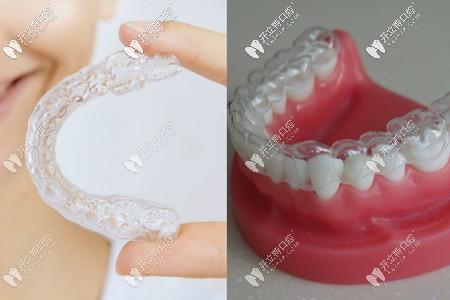 隐形牙套外观