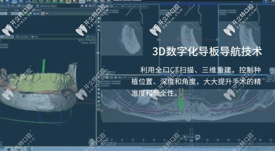 3D数字化导航技术特点