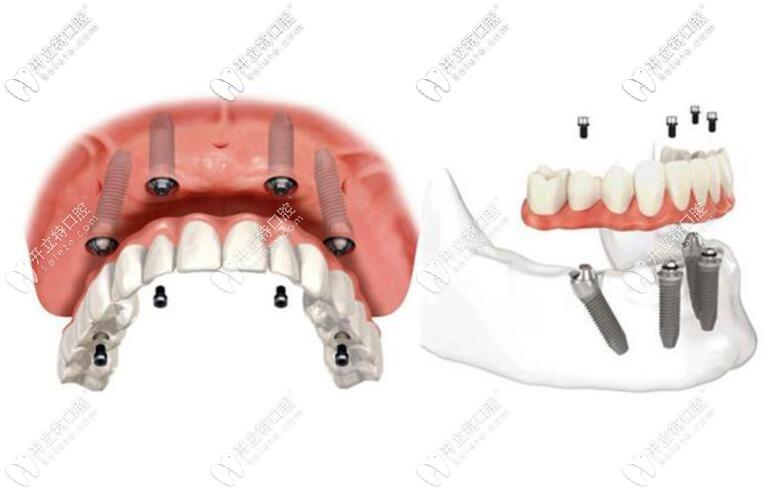 即刻负重种植牙技术示意图
