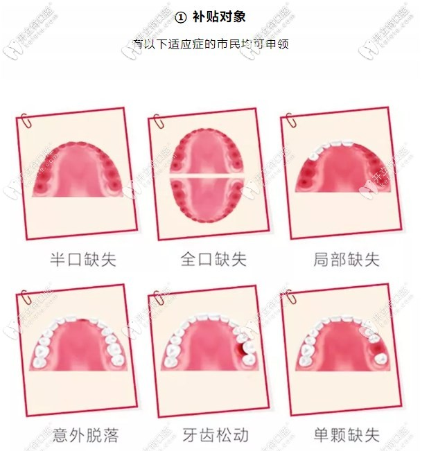 在惠州致美口腔做全口种植牙可享受到补贴3000-8000元