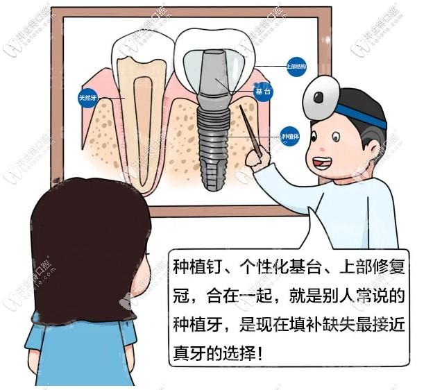 在广州穗华口腔做1颗诺贝尔种植牙多少钱?过程疼不疼呢!