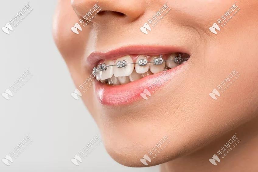 深圳美莱矫正牙齿的收费标准,并附上我戴牙箍的前后对比图