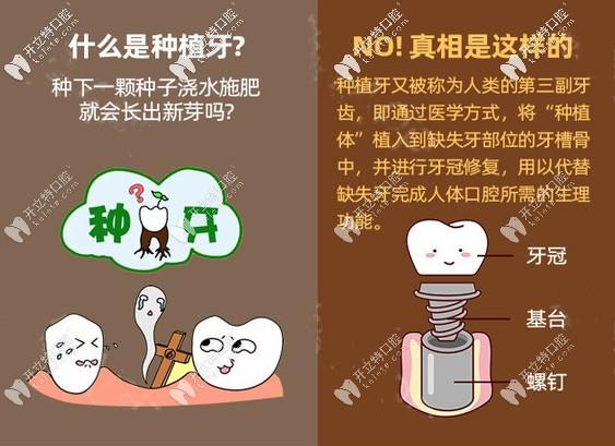 在广州好大夫口腔做进口种植牙多少钱,缺牙久了还能种牙吗