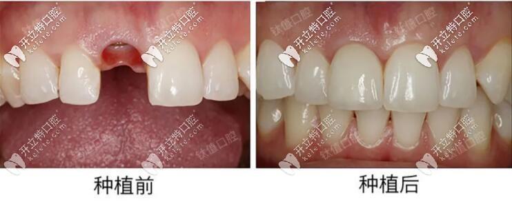 上门牙缺失做的nobel即刻种植牙效果太好,点赞北京钛植口腔
