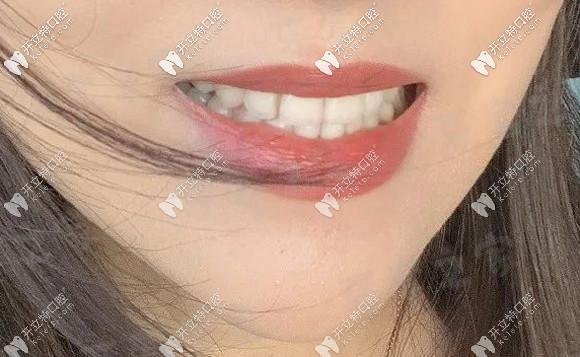 我在广州穗华口腔戴陶瓷半隐形牙套750天后的矫正效果...
