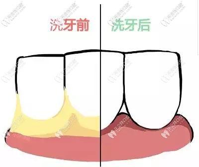 洗牙到底好不好?这个健康投资你可能没算过