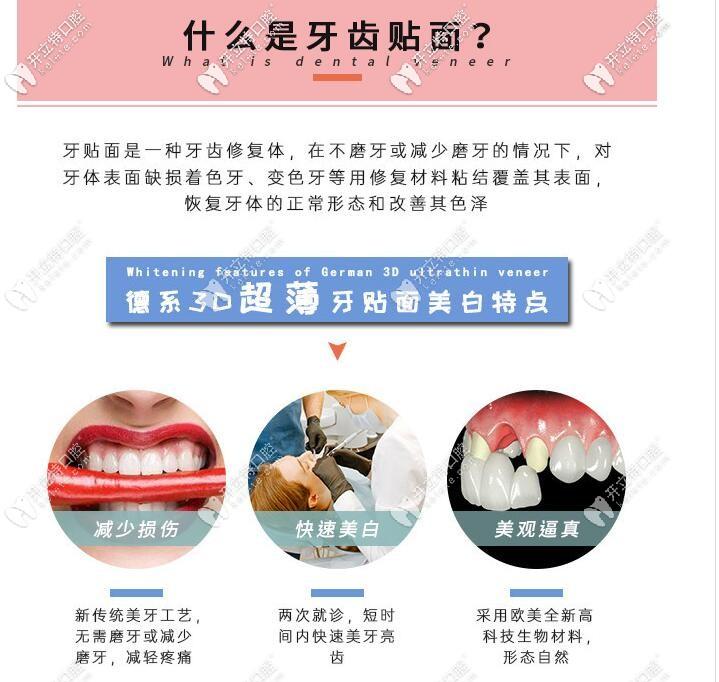 牙齿贴面及其特点介绍