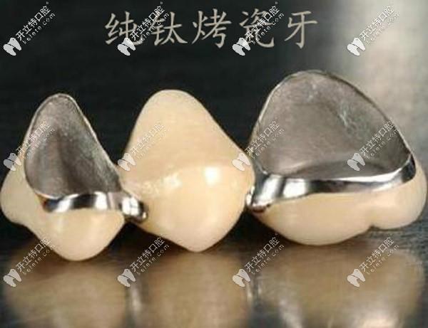 纯钛烤瓷牙容易崩瓷吗?做后牙用全瓷还是纯钛的好呢