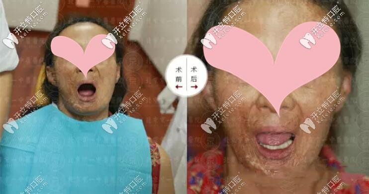 63岁王姨在北京京一口腔做allon4下半口种植牙只用了30分钟