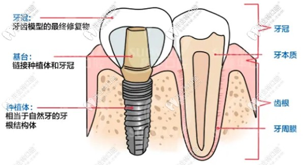 广州穗华口腔的半口全固定种植牙价格超划算