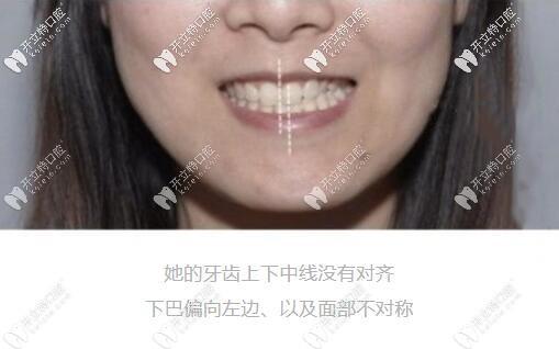 骨性偏颌一定要做正颌手术吗?怎么判断自己是骨性还是牙性