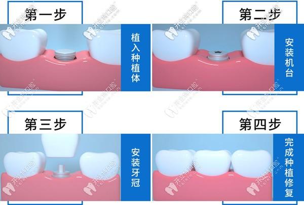 单颗种植牙步骤示意图