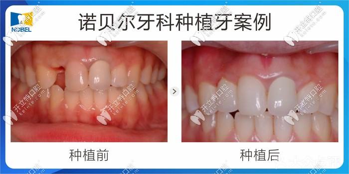 深扒西安诺贝尔口腔进口种植牙价格表,有韩系/欧美/德系