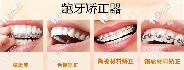深圳龅牙矫正器