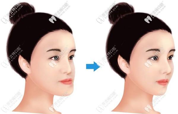 做正颌手术前后效果图
