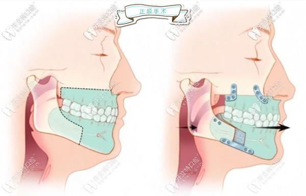 正颌手术示意图