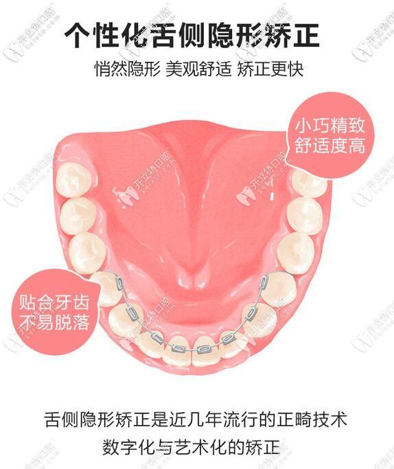 舌侧隐形矫正的特点