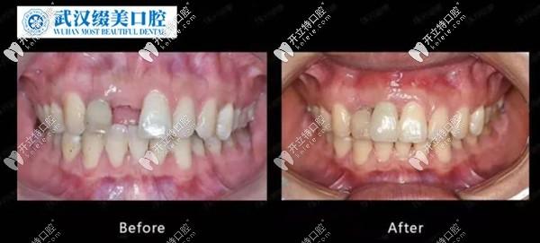 上门牙缺失不建议种植?不,其实种植牙的效果远超镶牙