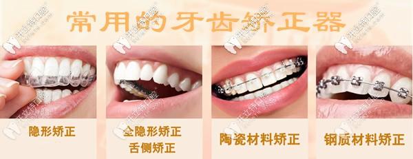 深圳盐田区牙科常用的牙齿矫正器