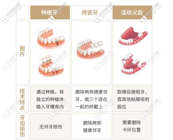 种植牙和活动假牙区别