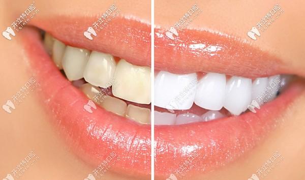 广州天河区鹏爱牙科的陶瓷牙齿贴面案例已更新!