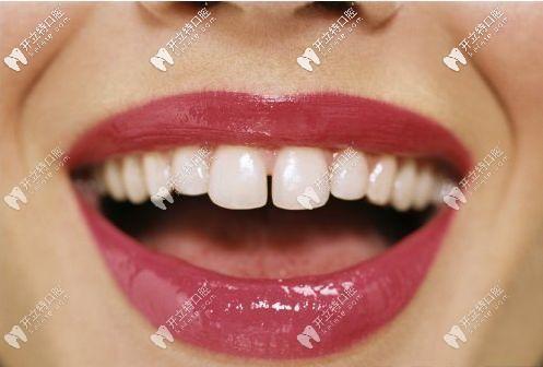 成年人门牙牙缝大怎么修复好?去做矫正还是贴面