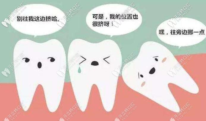 根据牙齿长势判断拔智齿的收费依据,瞧你是多少钱的智齿
