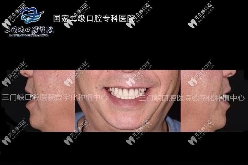 三门峡口腔医院张松涛全口种植案例到!10颗牙1小时就搞定!