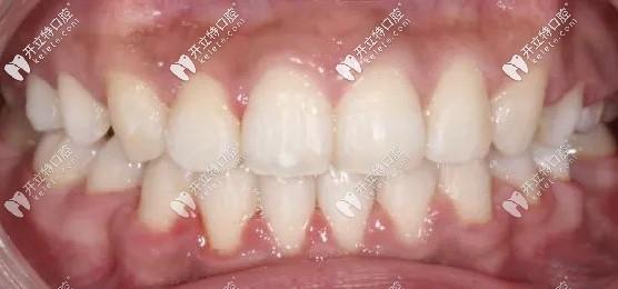 虎牙隐形矫正史-历时1年8个月戴了60副隐适美牙套...