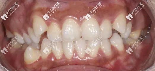 矫正前的牙齿图