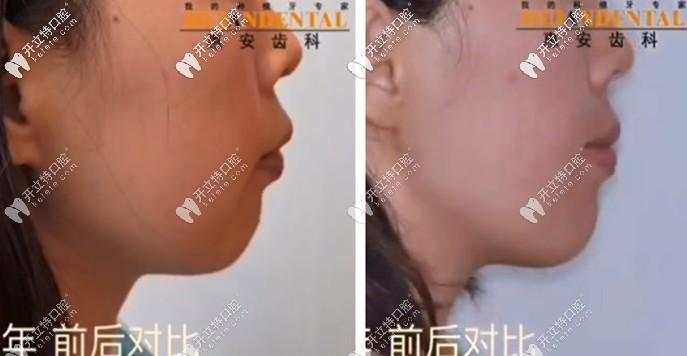 看呆!凸嘴少女在惠安齿科戴自锁托槽矫正半年后…