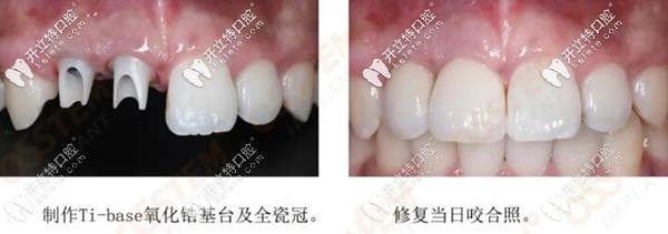 种植后戴临时牙冠的照片