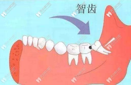摊牌了:三门峡市口腔医院拔智齿的收费标准明细来咯
