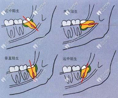 智齿的不同类型