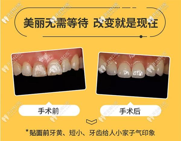 为美发问:重庆渝中区的美奥口腔做美加超薄牙贴面如何?