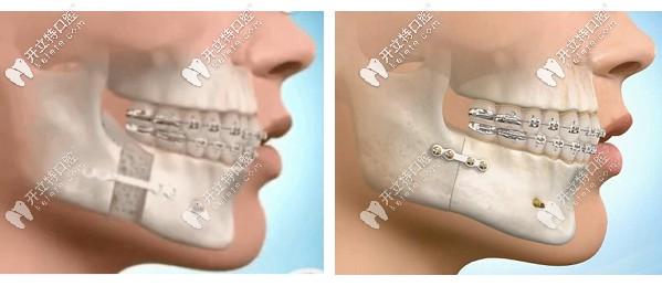 广州广大医院的口腔正颌手术价格大概多少钱,你不想看看?